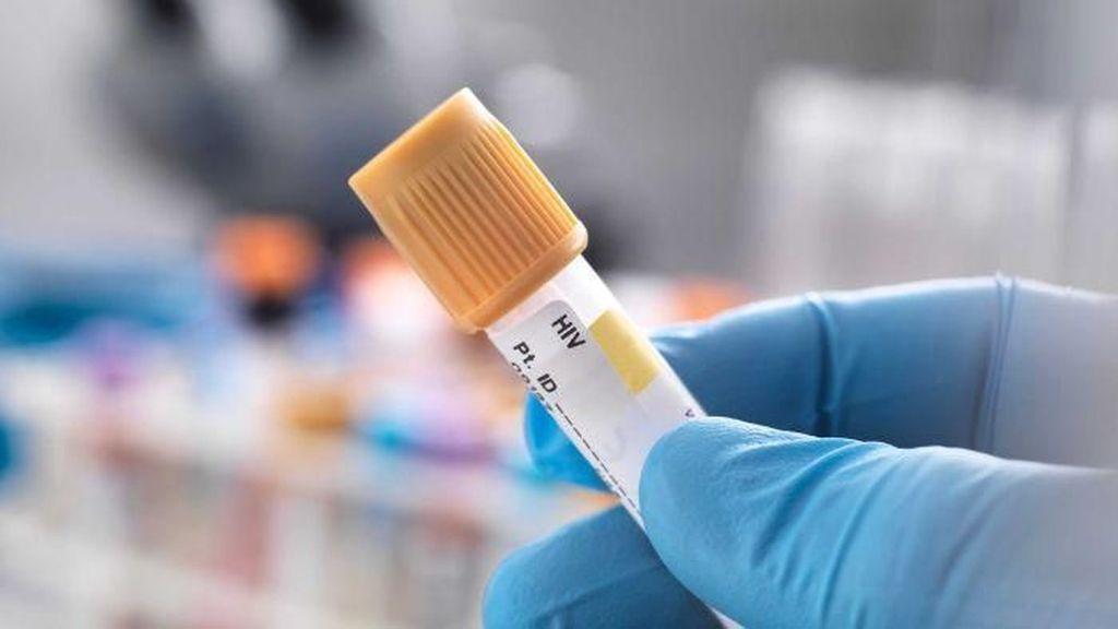 Angka Penularan HIV di Australia Terendah dalam 18 Tahun