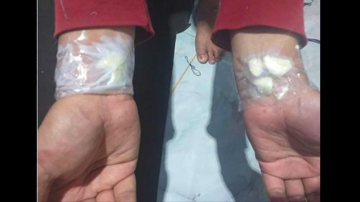 Bawang putih untuk sakit gigi. Foto: Tangkapan layar Facebook