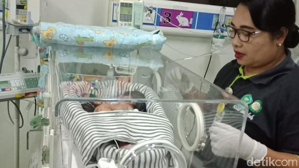 Tak Bisa Dipisahkan, Bayi Kembar Siam di Bali Jalani Rawat Jalan