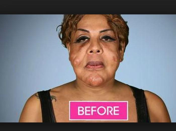 Kondisi wajah rusak transgender gara-gara suntik semen  Foto: dok. Instagram, Botched E!