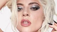 Lady Gaga Tawarkan Hadiah Rp 7,1 M Bagi Orang yang Bisa Temukan Anjingnya