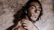 Kisah Hassan yang Dulu Di-bully Karena Kulit Belang, Kini Jadi Model Mendunia