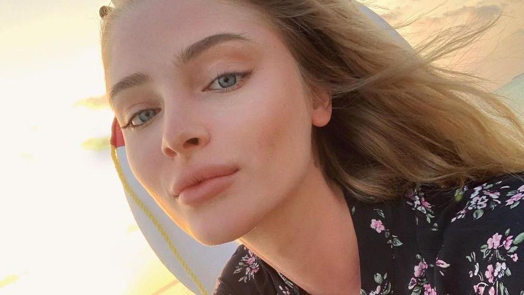 Potret Model yang Dihujat karena Pamer Senyum Baru Habis Operasi Gigi