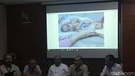 Bayi Kembar Siam Adam-Malik Jalani Operasi Pemisahan 23 Juli