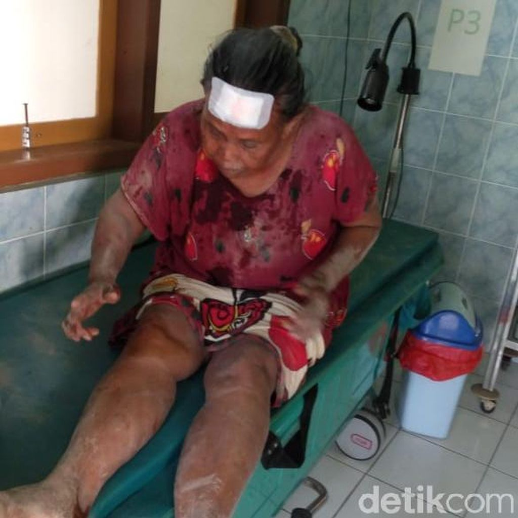 Satu Warga Banyuwangi Luka Imbas Gempa Bali