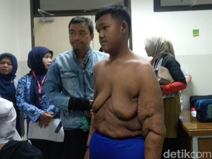 Aria Permana bocah obesitas asal Karawang jalani proses bedah plastik di RS Hasan Sadikin Bandung. (Foto: Mochamad Solehudin/detikcom)