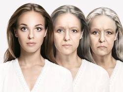 FaceApp di Dunia Nyata, Orang-orang Ini Tampak Tua karena Sindrom Langka