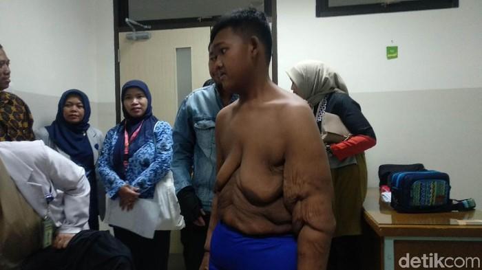 Aria menjalani proses bedah plastik pengangkatan kulit bergelambir di RS Hasan Sadikin Bandung. (Foto: Mochamad Solehudin)