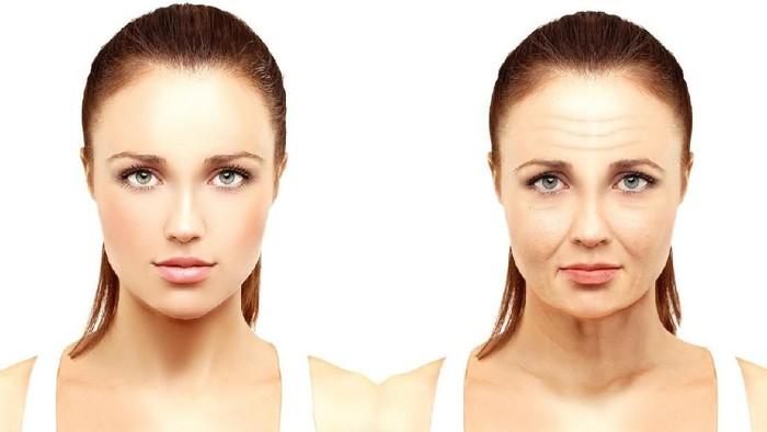 Penuaan dini membuat wajah seseorang tampak boros (Foto: iStock)