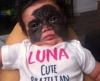 Putri Carol Fenner, Luna memiliki tanda lahir besar di wajahnya