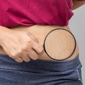 Perawatan Samarkan Stretch Marks, Wanita Alami Hal Ngeri: Jantungnya Meledak