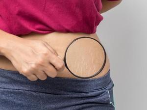 11 Cara Menghilangkan Stretch Mark dengan Alami dan Efektif