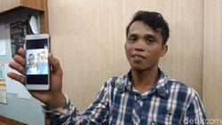 Kembar Siam Adam-Malik Sukses Dipisahkan, Ortu Tak Sabar Bawa ke Kampung