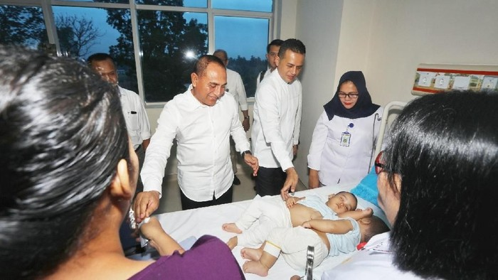 Gubernur Sumut Edy Rahmayadi menjenguk kembar siam Adam-Malik. (Foto: dok. Istimewa)