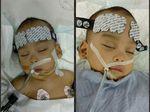 Operasi Lancar, Bayi Kembar Siam Adam-Malik Berhasil Dipisahkan