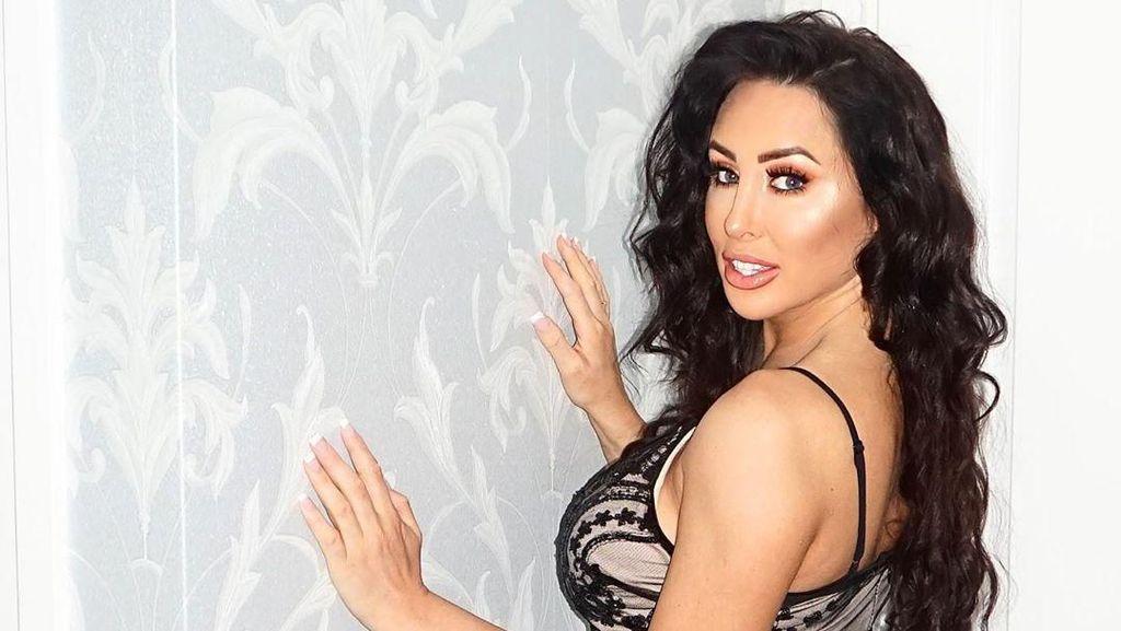 Vermak Penampilan, Bintang Reality TV Ini Oplas 50 Kali dengan Biaya Rp 8,7 M