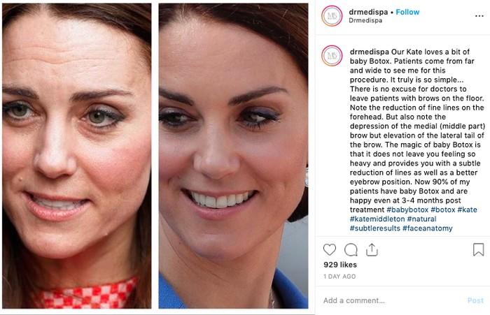 Kate Middleton bantah suntik botox. Foto: Instagram