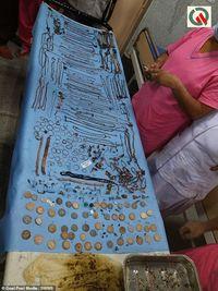Hobi Makan Perhiasan, Isi Perut Wanita Ini Berharga Hampir Rp 1 Miliar