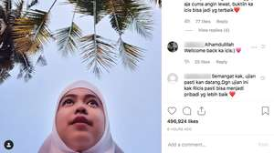 Abis di-Bully, Aurel Hermansyah Pamer Kaki di California