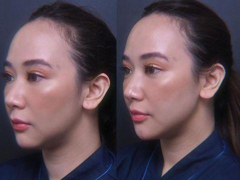 Beauty influencer Putricaya atau Puchh ungkap perawatan botox dan filler.