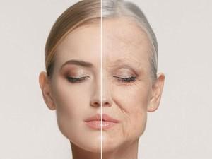 Muncul Tanda-tanda Penuaan Dini, Bisakah Diobati? Ini Kata Dokter Kulit