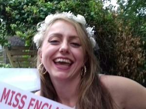 Miris! Finalis Ratu Kecantikan Ini Pernah Berbobot 34 Kg karena Narkoba