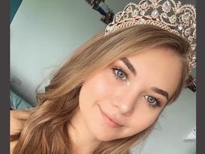 Cerita Pilu Ratu Kecantikan yang Diet Ekstrem karena Pengaruh Media Sosial