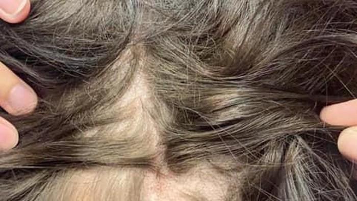 Ilustrasi botak pada wanita. Foto: facebook Ashley Rose Robinson