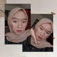 Novia Nur Ismi tampil percaya diri pamer jerawat di Instagram