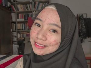 Viral Dipuji Netizen, Hijabers Cianjur yang Bangga Pamer Wajah Berjerawat