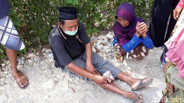 Sapi Kurban Jokowi di Gunungkidul Berontak, Seorang Warga Cedera