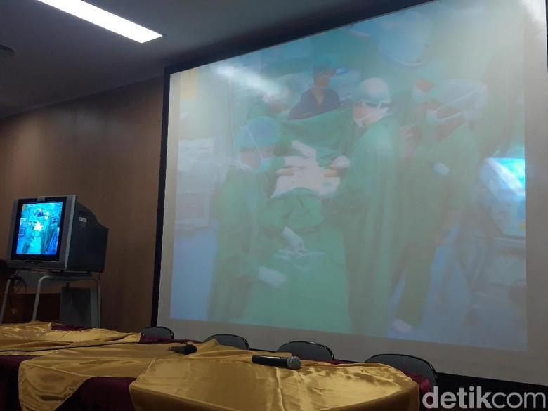 6 Jam Operasi, Kembar Siam Asal Kendari Berhasil Dipisahkan