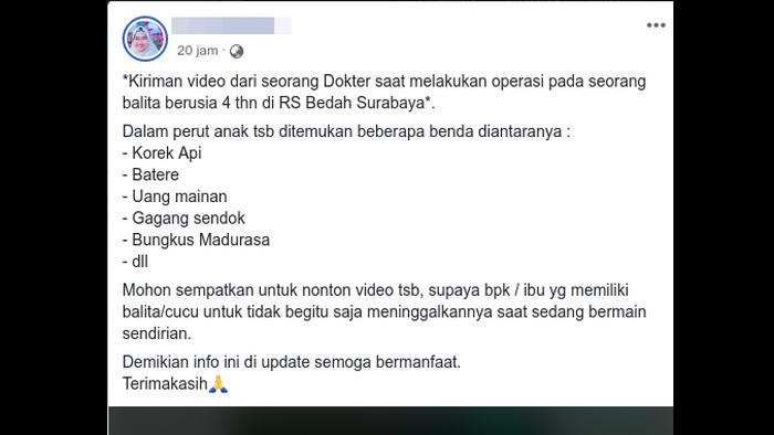 Narasi yang menyertai video viral operasi balita. (Foto: Tangkapan layar Facebook)