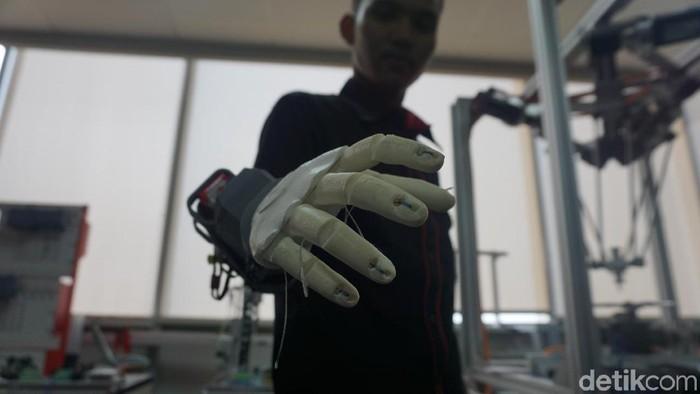 Tangan bionik yang digunakan Rian kerap disangka seperti Iron Man. Foto: Widiya Wiyanti/detikHealth