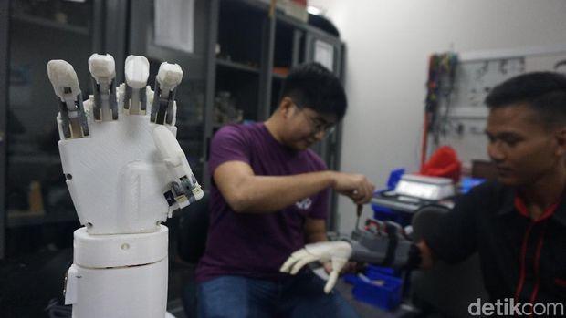 Butuh dua tahun untuk mengembangkan tangan bionik ini.