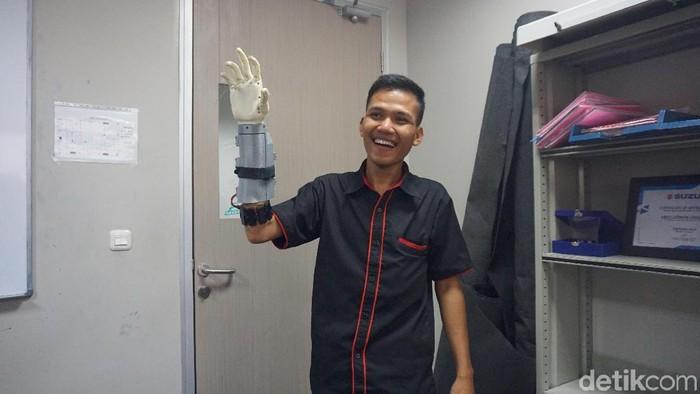 Rian, pemakai tangan bionik asli Tangerang. Foto: Widiya Wiyanti/detikHealth