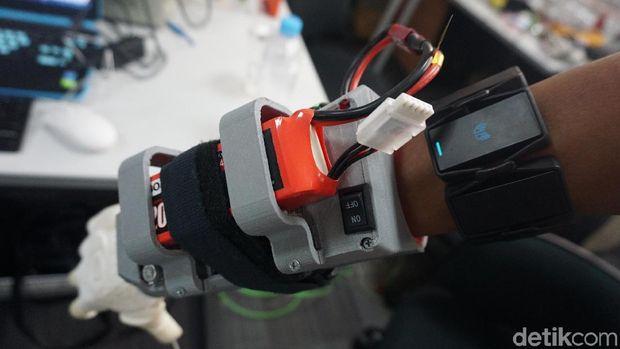 Lengan bionik ini bekerja dengan sensor canggih.