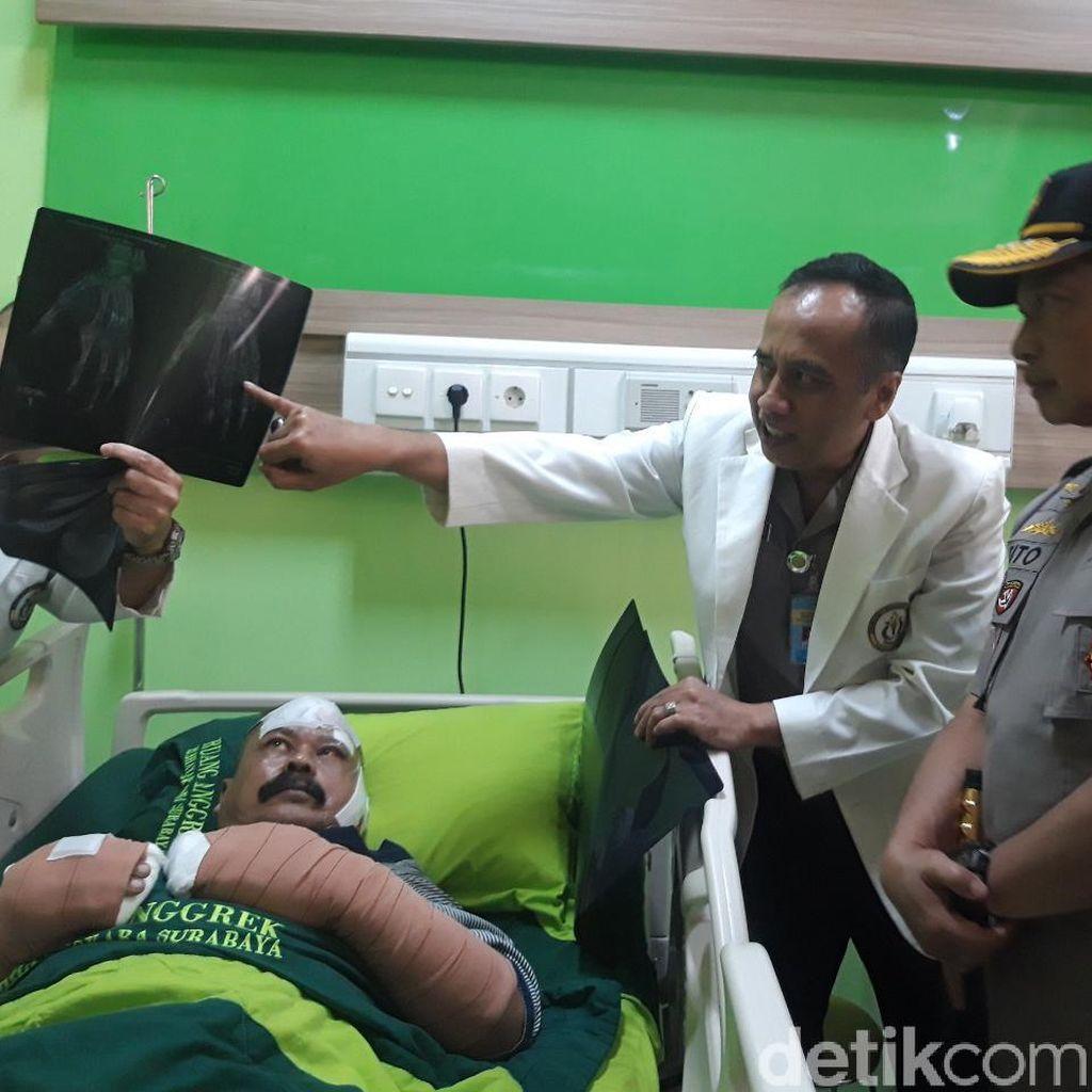 Dijenguk Kapolri, Curhat Polisi Korban Serangan Polsek Wonokromo Bikin Haru