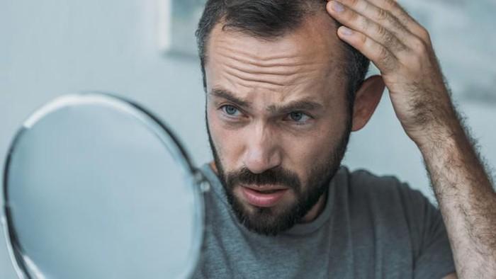 Banyak Pria Mulai Botak Di Usia 20 30 Tahun Mungkin Ini Sebabnya