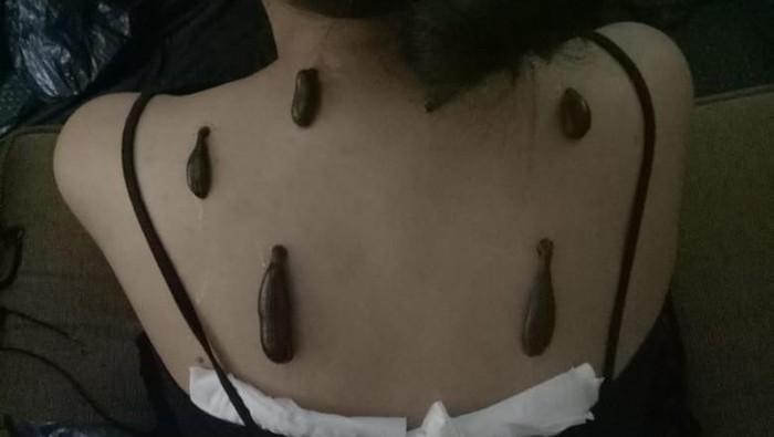 Seorang pasien menjajal terapi lintah (Foto: Dok. Pribadi)