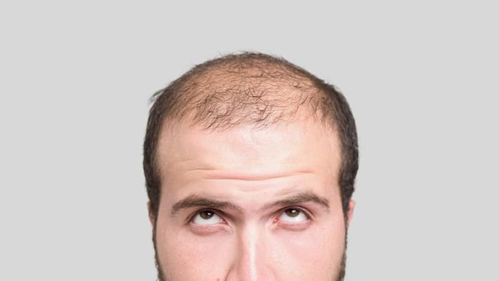 Pria botak dan rambut rontok