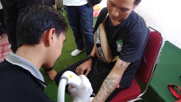 Penghapusan tato diberikan kepada anak-anak punk dan jalanan di komunitas Tasawuf Underground.
