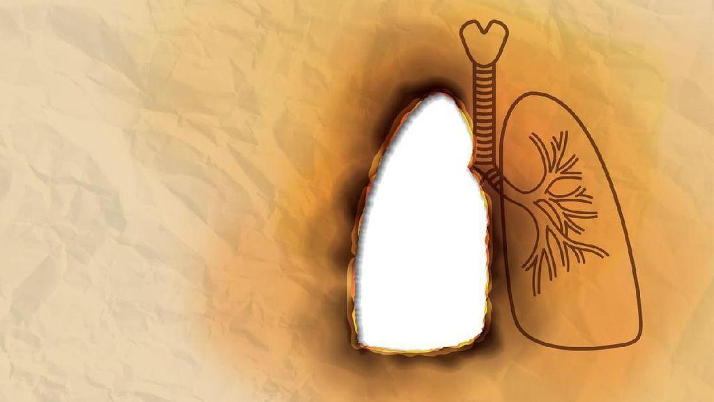 Deretan Penyumbang Tekornya BPJS Kesehatan, Penyakit Terkait Rokok Mendominasi