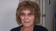 Cari Dokter Suntik Botox di Facebook, Wajah Wanita Ini Jadi Mirip Alien