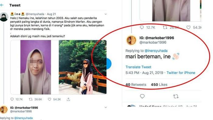 Gibran komentar cerita Ine, pengidap sindrom marfan. Foto: Viral (ditampilkan atas izin yang bersangkuta)