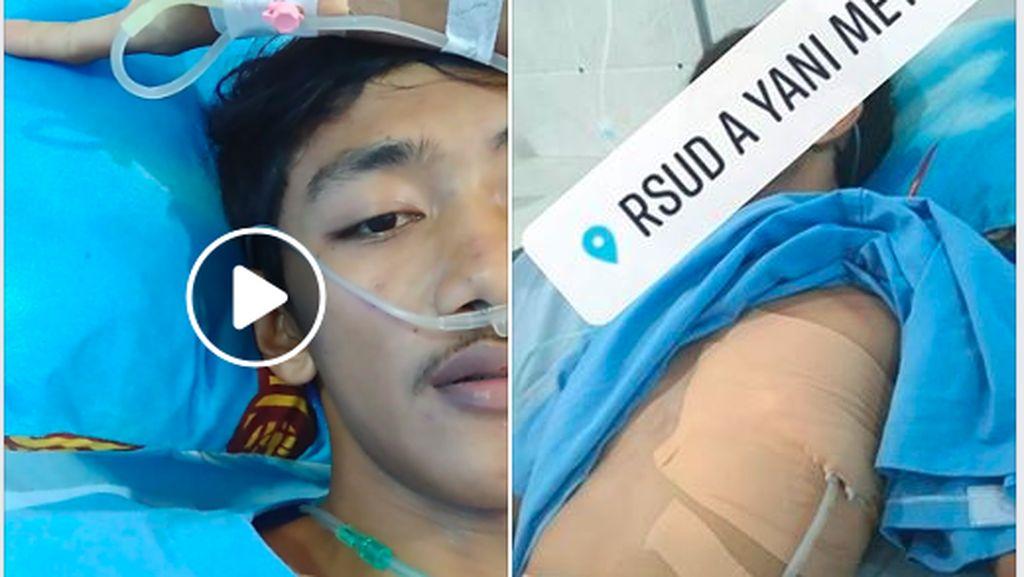 Paru-paru Niko Dibor Karena Pneumothorax Spontan, Kondisi Apa Itu?