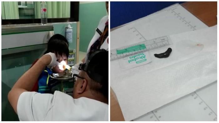Lintah yang berhasil dikeluarkan dari hidung anak. (Foto: dok.pribadi/Puji)
