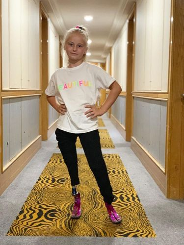 Model Cilik yang 2 Kakinya Diamputasi Akan Tampil di New York Fashion Week