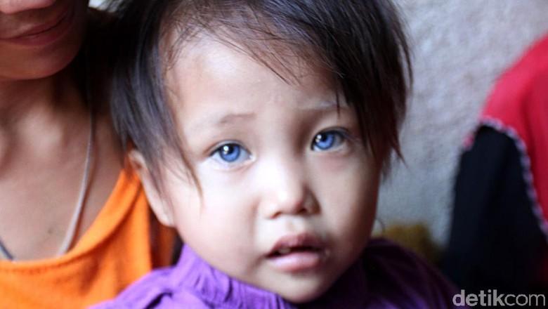 Sosok Balita di Bandung yang Memiliki Bola Mata 3 Warna