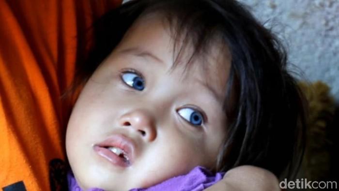 Bocah ini disebut-sebut punya mata yang bisa berubah-ubah warna (Foto: Wisma Putra)